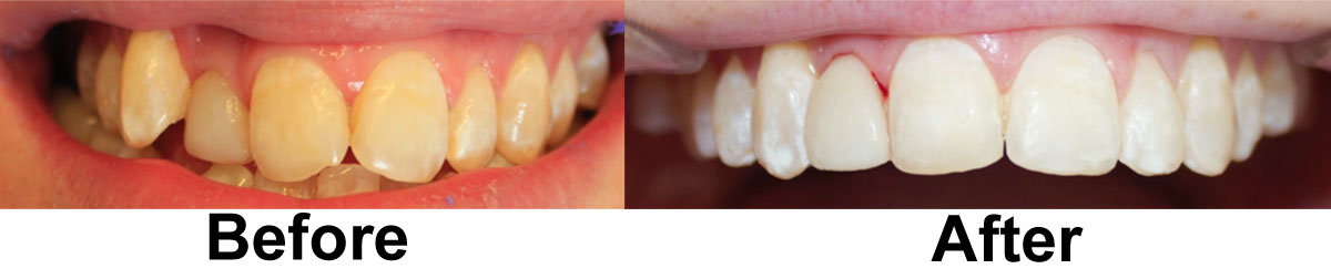 before-and-after-sixmonthsmiles