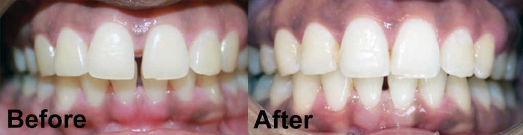 before-and-after-braces